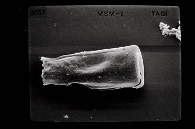 <i><i>Conochitina argillophila</i> | Conochitina cf. argillophila</i><br />Ikla borehole, 185.50 m, Jaagarahu Stage ( 754-658)