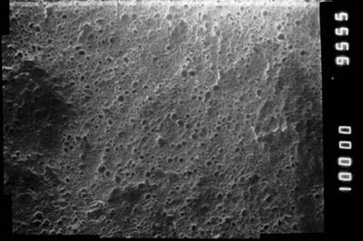 <i><i>Conochitina emmastensis</i></i><br />Jaagarahu borehole, 45.50 m, Jaani Stage ( 273-16)