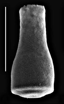 <i><i>Conochitina savalaensis</i></i><br />Viljandi 91 borehole, 373.80 m, Kukruse Stage ( 660-1666)