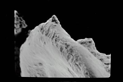 <i><i>Anthochitina superba</i></i><br />Ventspils D-3 borehole, 336.20 m, Kaugatuma Stage ( 754-618)