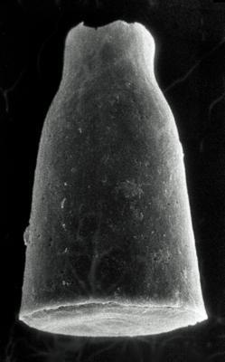 <i><i>Chitinozoa</i> | Cyathochitina cf. calix (Eisenack, 1931)</i><br />Rapla borehole, 114.80 m, Rakvere Stage ( 190-11)