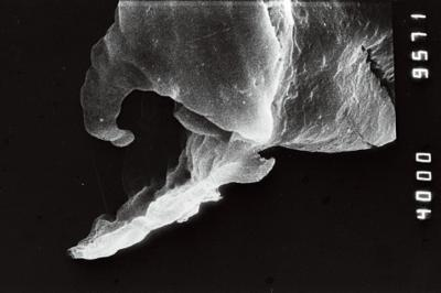 <i><i>Clathrochitina clathrata</i>   Clathrochitina cf. clathrata</i><br />Jaagarahu borehole, 59.60 m, Adavere Stage ( 754-203)