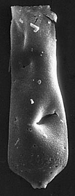 <i><i>Chitinozoa</i> | Conochitina cf. flamma Laufeld, 1974</i><br />Jaagarahu borehole, 46.40 m, Jaani Stage ( 273-18)
