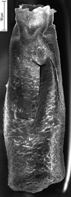 <i><i>Conochitina pachycephala</i></i><br />Ikla borehole, 229.70 m, Jaagarahu Stage ( 350-28)