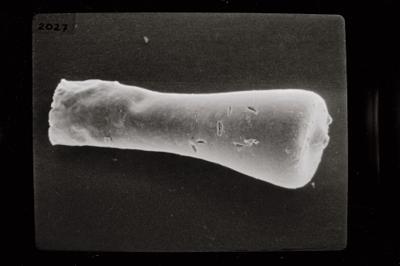 <i><i>Conochitina subcyatha</i></i><br />Ruhnu 500 borehole, 338.75 m, Jaagarahu Stage ( 754-776)