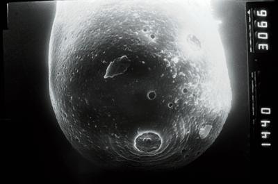<i><i>Eisenackitina lagena</i></i><br />Ruhnu 500 borehole, 362.85 m, Jaagarahu Stage ( 754-1054)