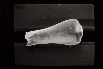 <i><i>Conochitina subcyatha</i></i><br />Ruhnu 500 borehole, 338.75 m, Jaagarahu Stage ( 754-777)