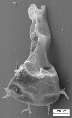 <i><i>Ancyrochitina</i> | Ancyrochitina cf. bifurcaspina</i><br />Staicele 4 borehole, 493.50 m, Juuru Stage ( 754-1359)