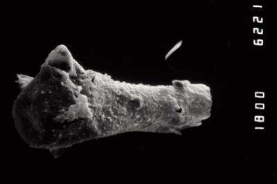 <i><i>Ancyrochitina</i> | Ancyrochitina cf. diabolus</i><br />Ohesaare borehole, 112.60 m, Paadla Stage ( 754-989)