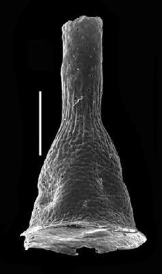 <i><i>Cyathochitina</i> | Cyathochitina cf. patagiata Jenkins</i><br />Grötlingbo 1 borehole, Gotland, 421.60 m, Nabala Stage ( 688-3)