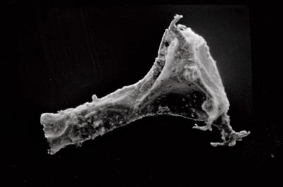 <i><i>Ancyrochitina gutnica</i></i><br />Ruhnu 500 borehole, 373.90 m, Jaagarahu Stage ( 754-581)