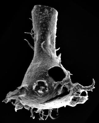 <i><i>Chitinozoa</i> | Plectochitina sp. 1 Nestor, 1994</i><br />Ohesaare borehole, 174.40 m, Jaagarahu Stage ( 220-61)