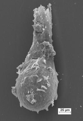 <i><i>Ramochitina</i> | Ramochitina sp.</i><br />Staicele 4 borehole, 296.00 m, Adavere Stage ( 754-1382)