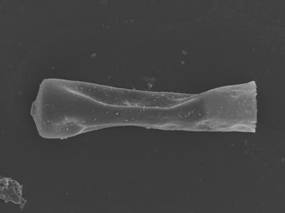 <i><i>Conochitina claviformis</i></i><br />Ohesaare borehole, 161.30 m, Jaagarahu Stage ( 754-345)