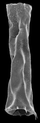 <i><i>Spinachitina maennili</i></i><br />Kolka 54 borehole, 632.70 m, Raikküla Stage ( 546-12)