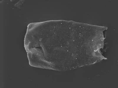 <i><i>Conochitina visbyensis</i> | Conochitina visbyensis?</i><br />Kolka 54 borehole, 601.00 m, Adavere Stage ( 754-417)