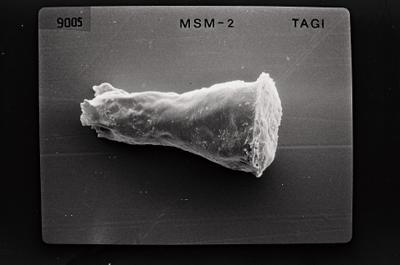 <i><i>Cingulochitina cingulata</i></i><br />Ohesaare borehole, 294.16 m, Jaagarahu Stage ( 754-560)