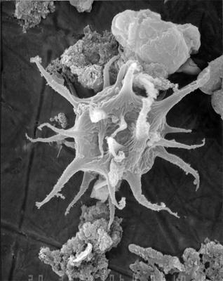 Cheleutochroa differta Uutela et Tynni, 1991, GIT 344-55