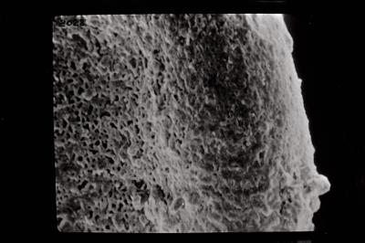 <i><i>Conochitina lagena</i>   Conochitina aff. lagena</i><br />Ventspils D-3 borehole, 726.00 m, Jaagarahu Stage ( 754-789)