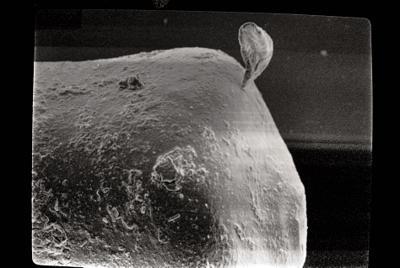 <i><i>Chitinozoa</i> | Conochitina cf. mamilla Laufeld, 1974</i><br />Kipi borehole, 115.15 m, Jaani Stage ( 272-108)