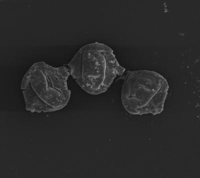 <i><i>Margachitina margaritana</i></i><br />Ventspils D-3 borehole, 815.00 m, Telychian ( 754-1350)