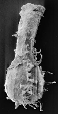 <i><i>Ramochitina costata</i> | Gotlandochitina costata (Umnova, 1981)</i><br />Ruhnu 500 borehole, 379.00 m, Jaagarahu Stage ( 272-179)