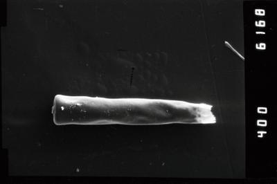 <i><i>Conochitina claviformis</i></i><br />Slite, Gotland,  m, Paadla Stage ( 754-1007)