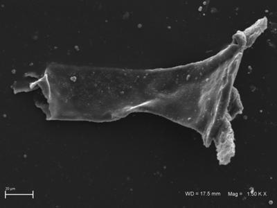 <i><i>Ancyrochitina</i> | Ancyrochitina cf. lemniscata</i><br />Ventspils D-3 borehole, 296.00 m,  ( 754-1819)