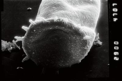 <i><i>Spinachitina</i> | Spinachitina cf. maennili</i><br />Puikule 42 borehole, 363.50 m, Adavere Stage ( 754-1126)