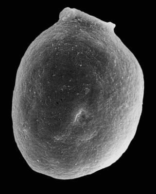 <i><i>Desmochitina amphorea</i></i><br />Kerguta 565 borehole, 145.94 m, Kukruse Stage ( 544-8)