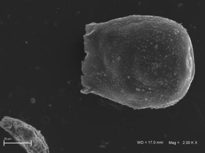 <i><i>Eisenackitina clunensis</i></i><br />Ventspils D-3 borehole, 334.40 m, Kaugatuma Stage ( 754-1809)