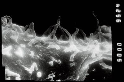 <i><i>Angochitina longicollis</i></i><br />Jaagarahu borehole, 49.50 m, Jaani Stage ( 754-175)