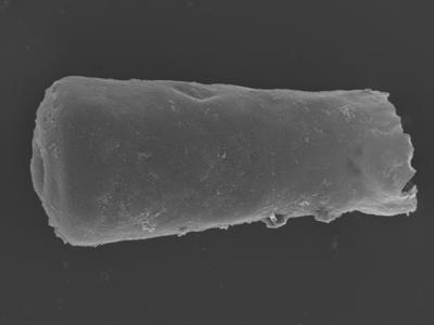<i><i>Conochitina argillophila</i> | Conochitina aff. argillophila</i><br />Ohesaare borehole, 161.30 m, Jaagarahu Stage ( 754-344)