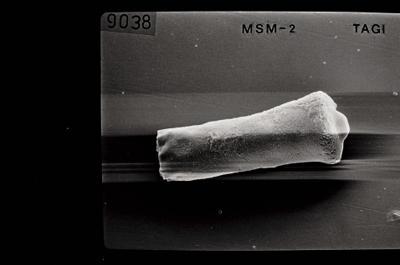<i><i>Conochitina argillophila</i> | Conochitina aff. argillophila</i><br />Ohesaare borehole, 166.90 m, Jaagarahu Stage ( 754-660)