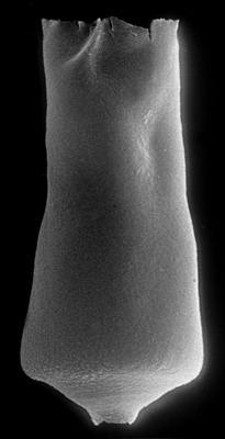 <i><i>Conochitina acuminata</i></i><br />Ohesaare borehole, 349.40 m, Adavere Stage ( 272-62)