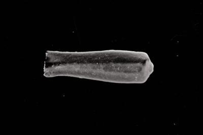 <i><i>Conochitina pachycephala</i> | Conochitina cf. pachycephala</i><br />Kolka 54 borehole, 465.30 m, Jaagarahu Stage ( 754-787)
