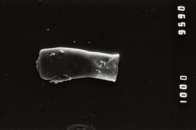 <i><i>Conochitina visbyensis</i></i><br />Jaagarahu borehole, 46.40 m, Jaani Stage ( 754-216)