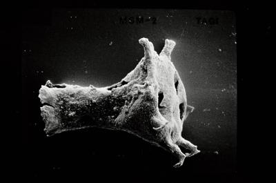 <i><i>Ancyrochitina tomentosa</i> | Ancyrochitina cf. tomentosa</i><br />Ruhnu 500 borehole, 404.20 m, Jaagarahu Stage ( 754-541)