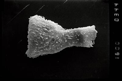 <i><i>Sphaerochitina indecora</i></i><br />Ohesaare borehole, 169.02 m, Jaagarahu Stage ( 754-1083)