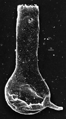 <i><i>Chitinozoa</i> | Plectochitina cf. spongiosa (Achab, 1977)</i><br />Aizpute 41 borehole, 982.60 m, lower Silurian ( 345-8)