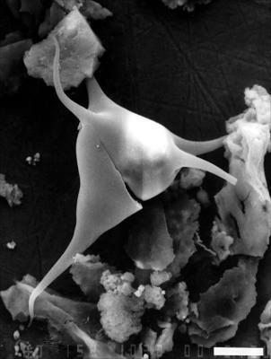 Veryhachium rhomboidium Downie, 1959, GIT 344-317
