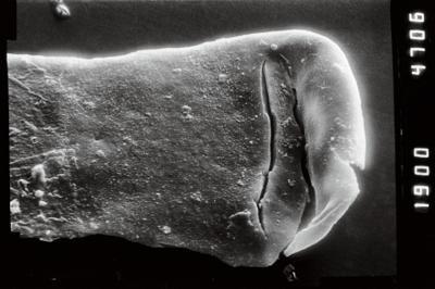 <i><i>Conochitina</i> | Conochitina cf. iklaensis</i><br />Puikule 42 borehole, 363.50 m, Adavere Stage ( 754-1127)