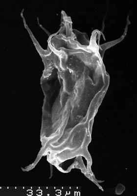 Acanthodiacrodium tremadocum Gorka, 1967, TUG 1536-22
