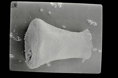 <i><i>Eisenackitina lagenomorpha</i></i><br />Pavilosta 51 borehole, 564.40 m, Kaugatuma Stage ( 754-611)