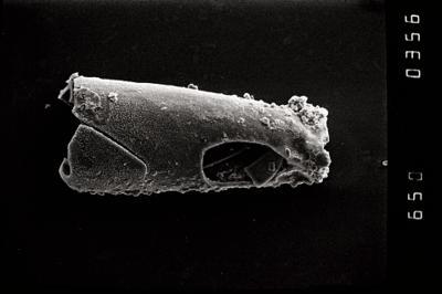 <i><i>Conochitina cribrosa</i></i><br />Ohesaare borehole, 198.80 m, Jaagarahu Stage ( 754-1102)