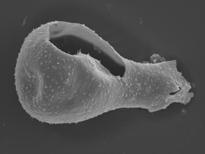 <i><i>Sphaerochitina lycoperdoides</i></i><br />Ohesaare borehole, 147.60 m, Rootsiküla Stage ( 754-361)
