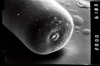 <i><i>Conochitina claviformis</i></i><br />Ohesaare borehole, 68.30 m, Kuressaare Stage ( 754-1044)