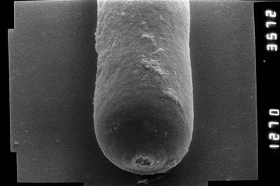 <i><i>Conochitina leptosoma</i> | Conochitina aff. leptosoma</i><br />Ruhnu 500 borehole, 392.80 m, Jaagarahu Stage ( 754-810)