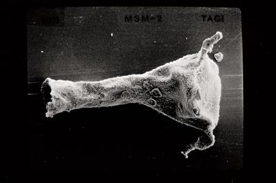 <i><i>Ancyrochitina ancyrea</i> | Ancyrochitina cf. ancyrea</i><br />Varbla 502 borehole, 121.40 m, Jaani Stage ( 754-533)