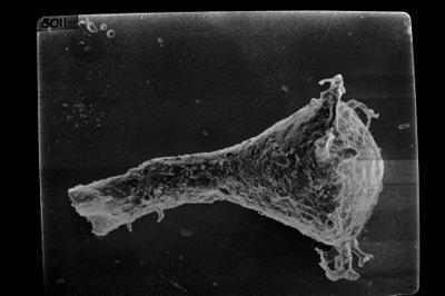 <i><i>Ramochitina</i> | Ramochitina sp.</i><br />Ohesaare borehole, 299.85 m, Jaagarahu Stage ( 754-1779)